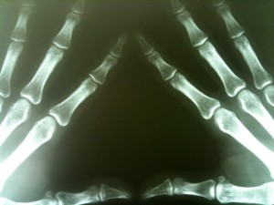 X-Ray of Fingers